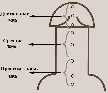 Гипоспадия – операция, головчатая и стволовая гипоспадия у мальчиков